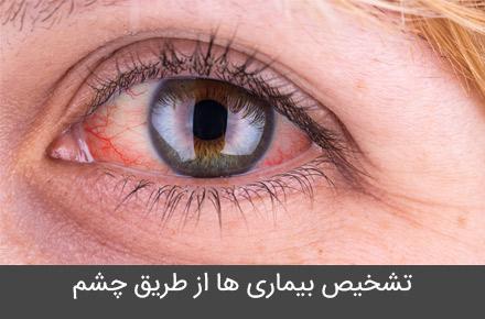 تشخیص بیماری ها  از طریق چشم