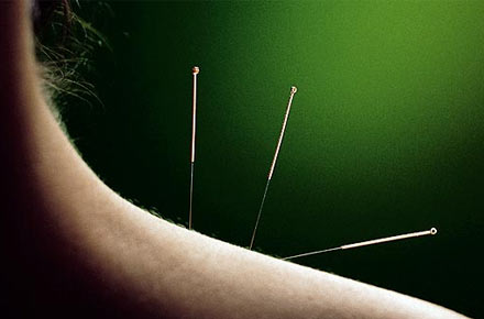 آنچه طب سوزنی می تواند درمان کند؟