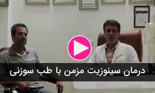 درمان سینوزیت مزمن با طب سوزنی