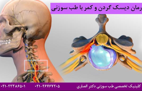 درمان دیسک گردن و کمر با طب سوزنی