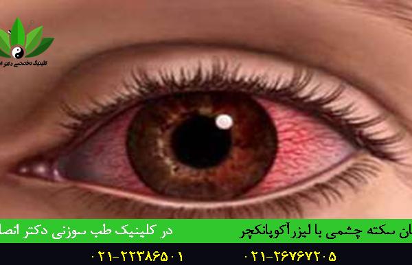 درمان سکته چشمی با طب سوزنی و لیزرآکوپانکچر