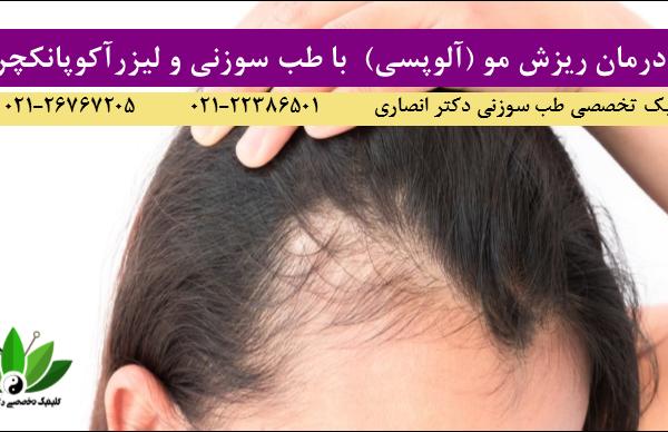 درمان ریزش مو با لیزرآکوپانکچر