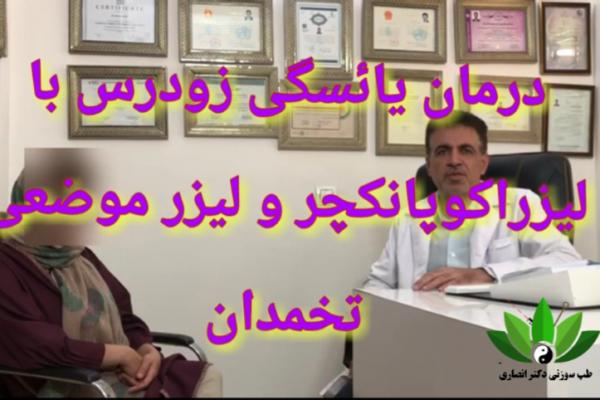 نمونه بالینی درمان یائسگی زودرس با لیزرآکوپانکچر و لیزر موضعی تخمدان