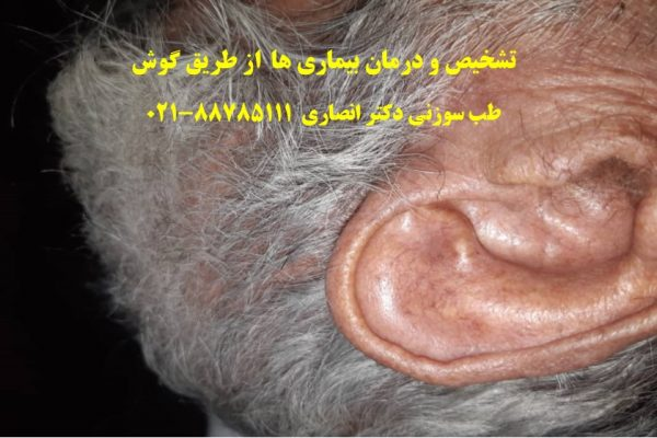 نمونه بالینی تشخیص بیماری از روی گوش