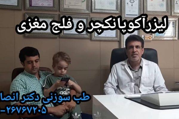 لیزرآکوپانکچر و فلج مغزی در کودکان