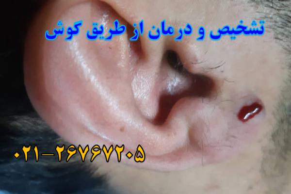 نمونه بالینی تشخیص و درمان بیماری از روی گوش