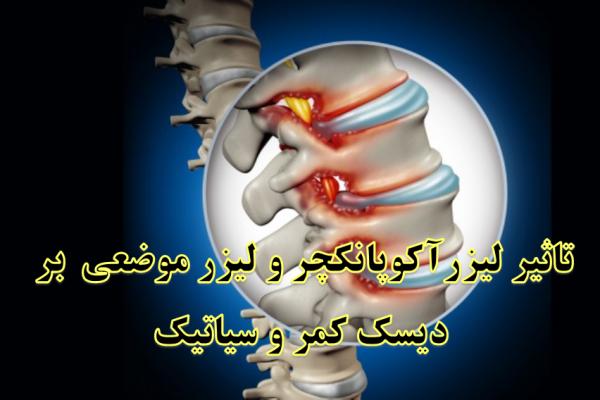 نمونه بالینی درمان دیسک کمر و سیاتیک با طب سوزنی لیزری
