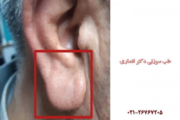 تشخیص وضعیت سلامت از روی ظاهر گوش