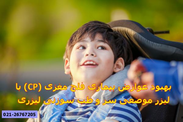 بهبود عوارض فلج مغزی با لیزر طب سوزنی و لیزر موضعی ناحیه سر
