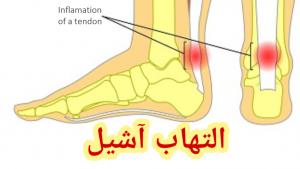 التهاب تاندون آشیل پا و لیزرآکوپانکچر