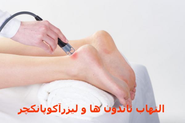 التهاب تاندون و لیزر کم توان