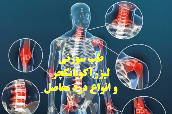 انواع درد مفاصل و درمان