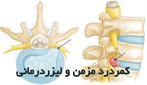 کمر درد- سیاتیک و لیزر درمانی